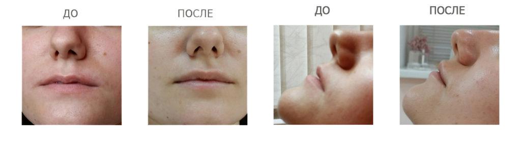 Увеличение губ Принцесс - увеличение губ гиалуроновой кислотой
