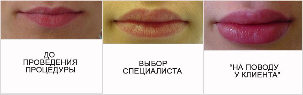 увеличение губ естественный вид